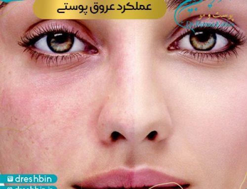 عروق پوستی چیست